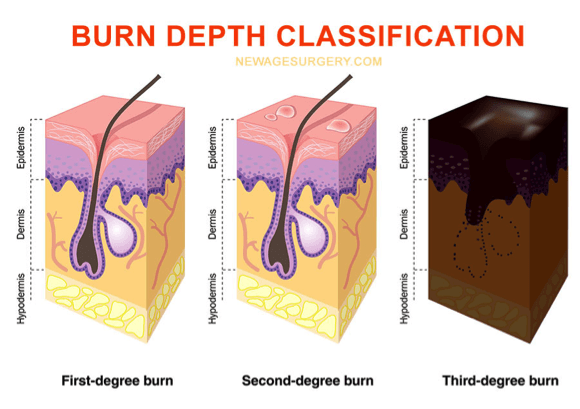 burn-depth-classification