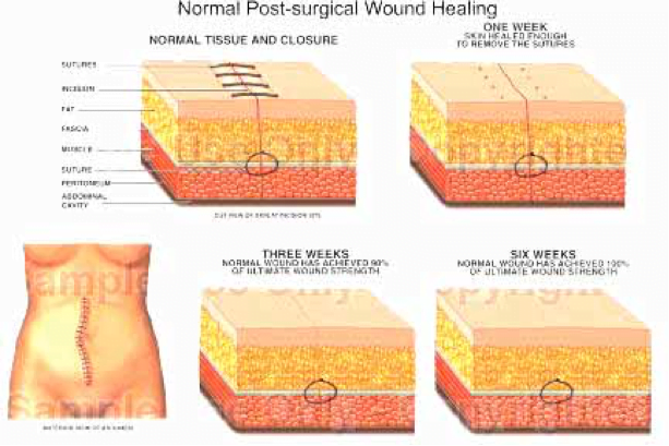 post-surgical-wound-healing